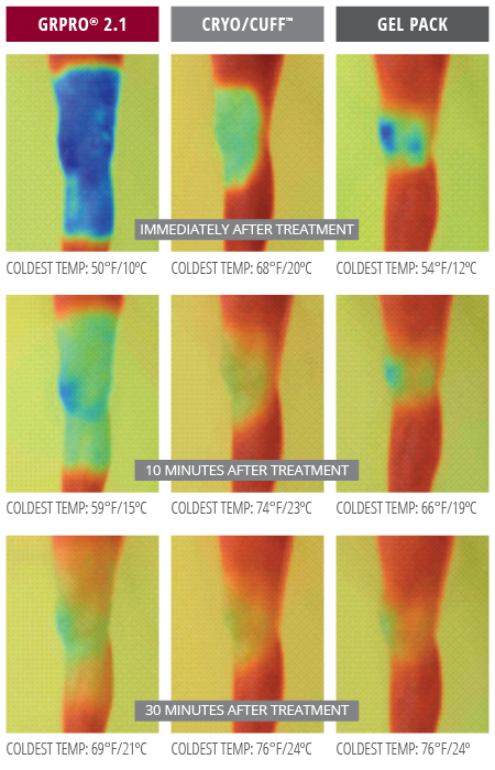 Thermal Imagery of Game Ready Wrap result